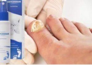 Onycosolve - pour la teigne - pas cher - action - effets